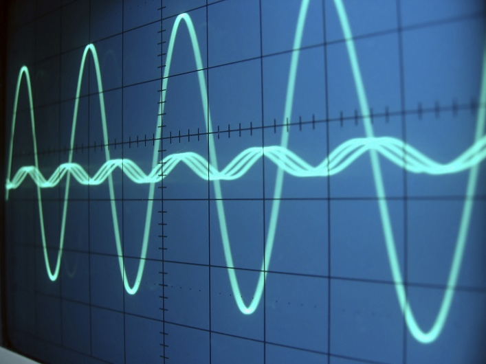 voice auto diallers